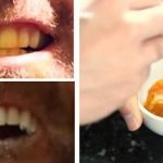 Whiten your teeth naturally with only three ingredients (Video)